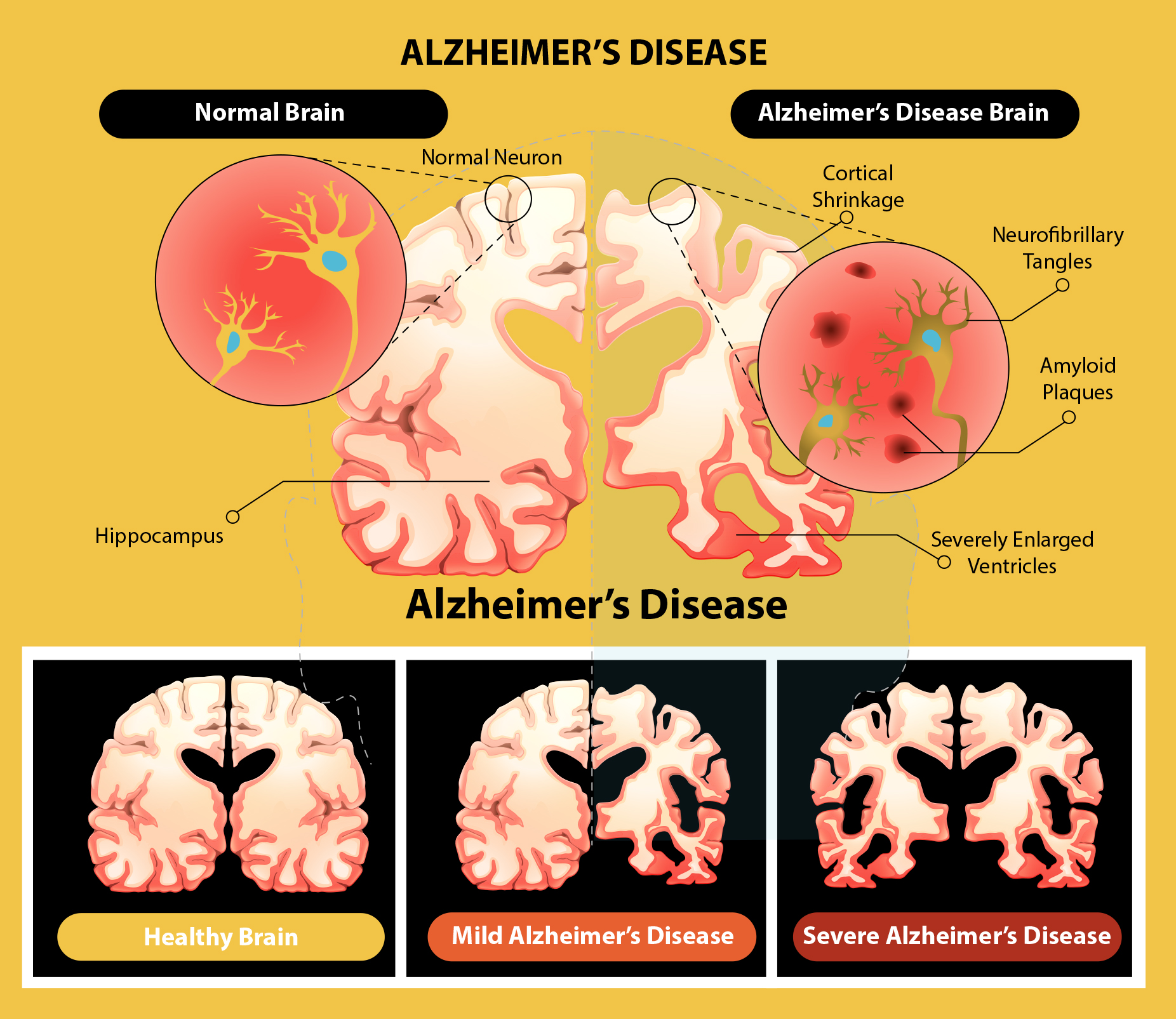 the main causes of alzheimers disease Alzheimer's disease is now the sixth leading cause of death in the us, but  researchers still do not know what causes the degenerative.