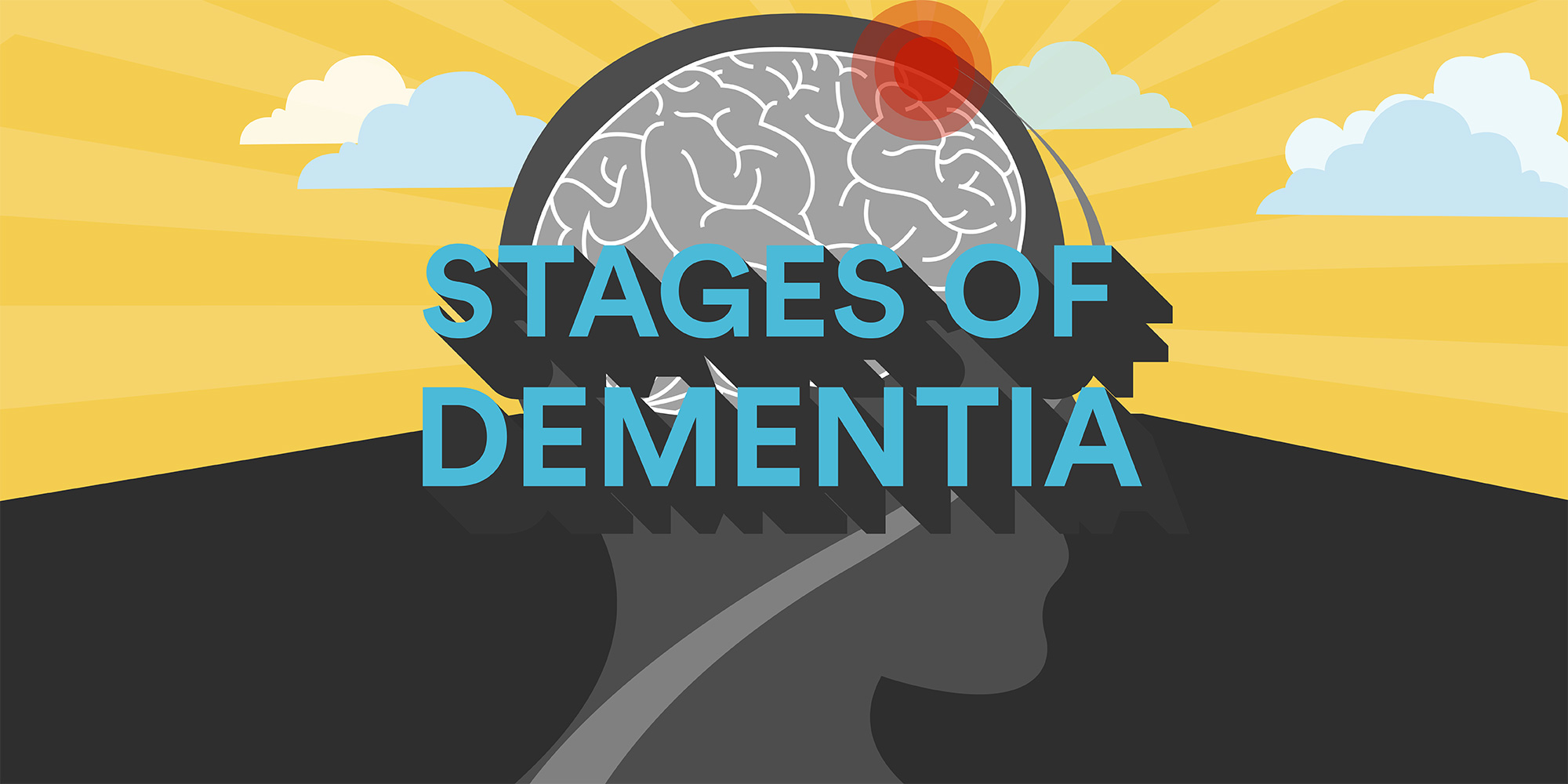 Stages of Dementia: The 3-Stage and the 7-Stage Models