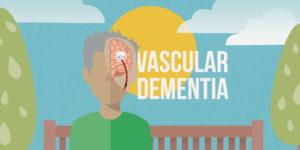 Vascular Dementia: A Complete Guide