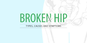 Broken Hip: Types, Causes and Symptoms