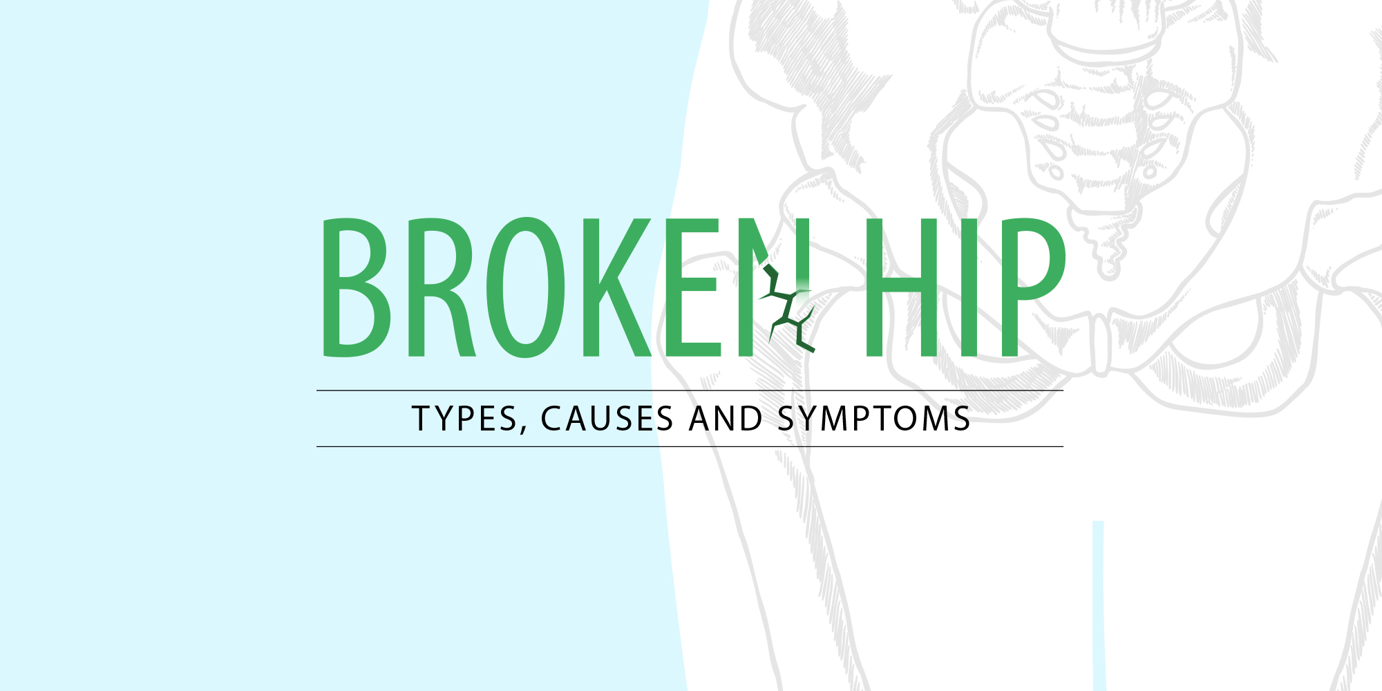 Broken Hip: Types, Causes and Symptoms - Kindly Care