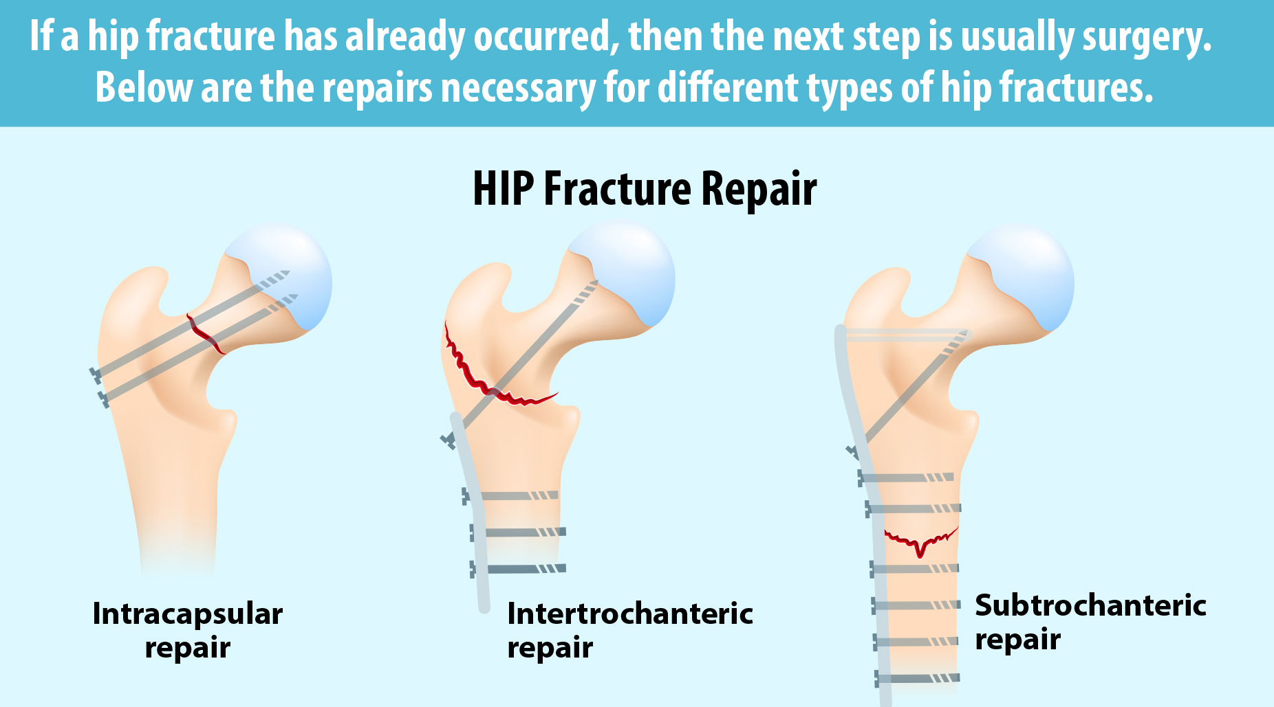 How to treat fracture